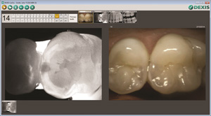 Caries Detection | Dr. Camillo L. Fontana, DMD